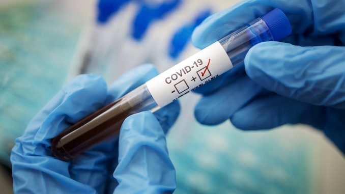 Gestellte Aufnahme. Symbolfoto: Coronavirus Diagnose. COVID-19, SARS-CoV-2. Berlin 17.03.2020 Berlin Deutschland *** Pr